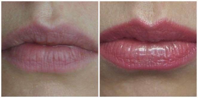 fuller_lips